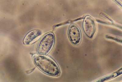 Pythium al microscopio